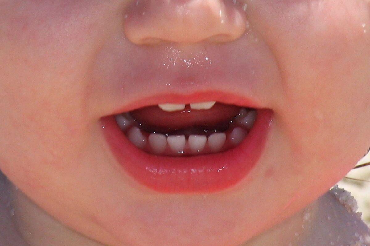 Kinderzahnarzt - Angst vor dem Zahnarzt